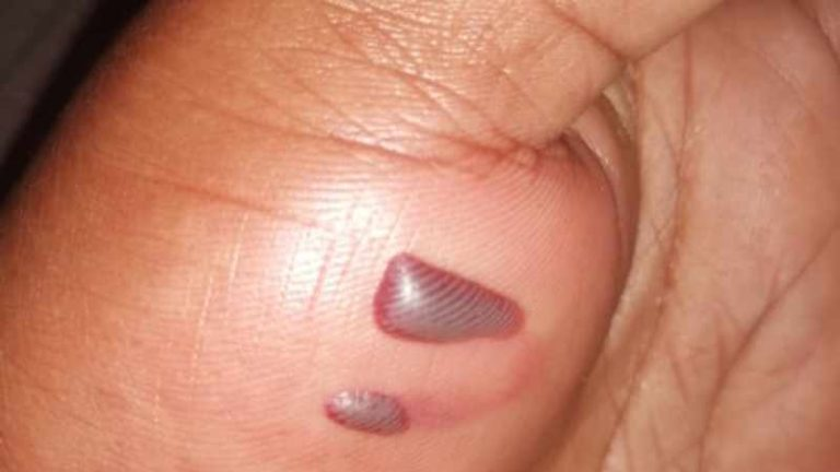KZN principal in hot water after allegedly caning learner who asked for a pen