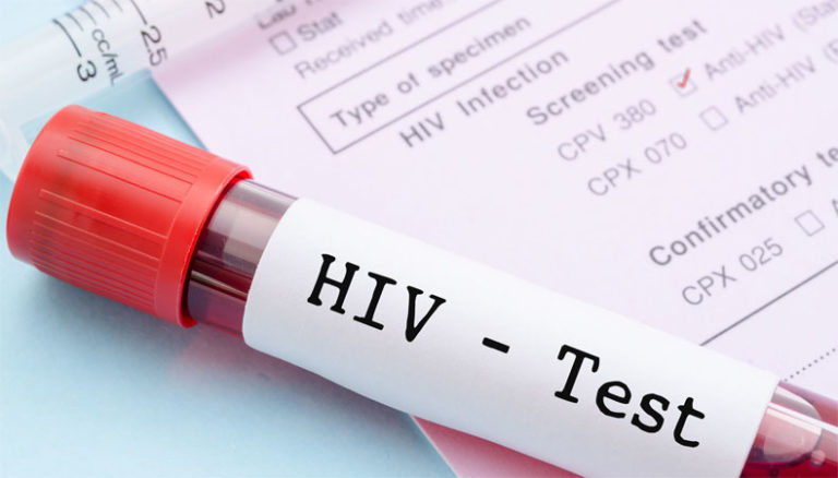 5,700 People Are Living With HIV In Upper West – GAC