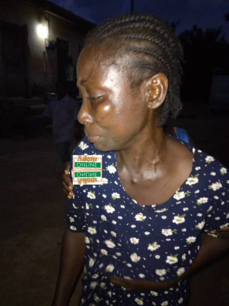 Man allegedly assaults wife over fish
